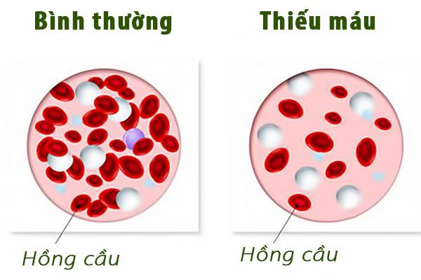 Thiếu máu khiến cơ thể mệt mỏi kéo dài 1