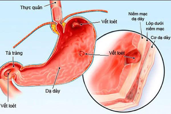 Tâm lý căng thẳng ảnh hưởng đến dạ dày và hệ tiêu hóa như thế nào 1